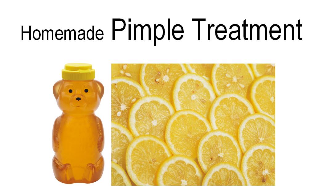 Natural Pimple Treatment Lemon