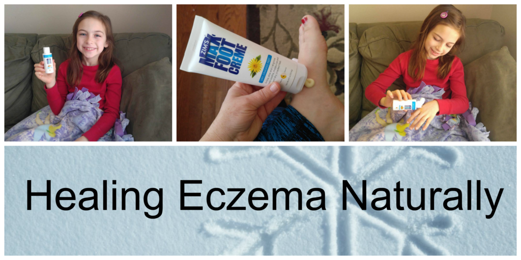 healing-eczema-naturally
