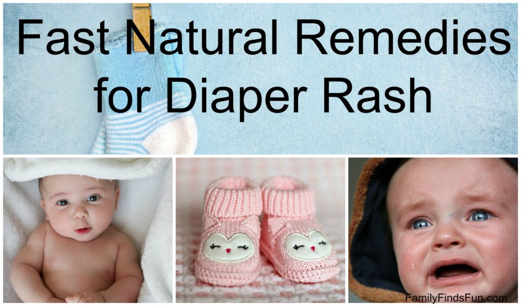 Natural Remedies for Diaper Rash